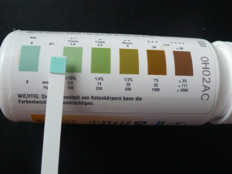 Dip the test strip into fresh urine Compare the results to ...